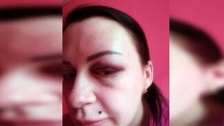 Госпитализированная с разрывом печени жительница Воронежа рассказала о причинах конфликта с мужем