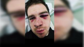 Под Воронежем на глазах у двоих маленьких детей жестоко избили их отца