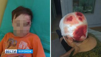В Воронежской области сосед избил вилами пенсионерку-инвалида и 9-летнего ребёнка