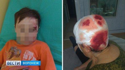 Судьбу напавшего с вилами на ребёнка и бабушку воронежского сельчанина решат после экспертиз