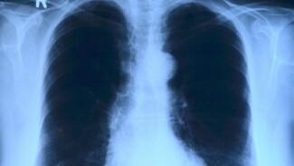 В Воронеже резко выросли цены на КТ лёгких