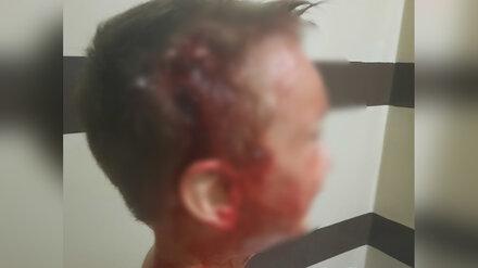 Следователи проверят работу чиновников после нападения собаки на мальчика в Нововоронеже