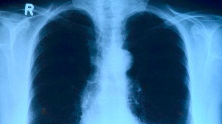 Врачи рассказали воронежцам о причинах рака лёгкого