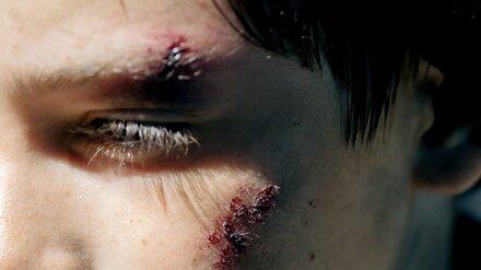 В Воронеже иномарка возле перехода сбила 11-летнего школьника