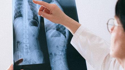 Воронежские врачи перечислили причины рака лёгкого