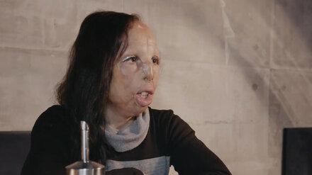 «Не с обложки, но уже что-то». Воронежец помог «девушке без лица» добиться операции