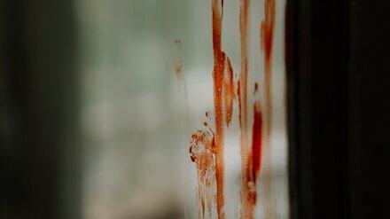 В Воронежской области на мясокомбинате лифт зажал голову 33-летнего грузчика