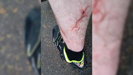 Собака с чипом напала на воронежского велосипедиста в «Олимпике»