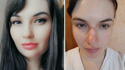 Селфи до и после «красной зоны» показала измученная воронежская медсестра