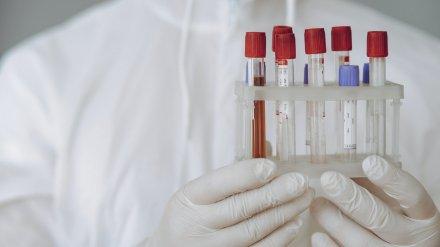 Санврачи рассказали о результатах первых тестов воронежцев на антитела к COVID-19