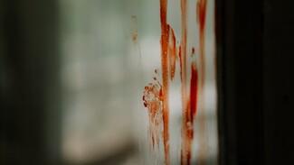 В Воронежской области спасли упавшего с большой высоты окровавленного мужчину