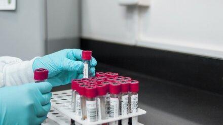 Ещё 315 воронежцев заразились коронавирусом