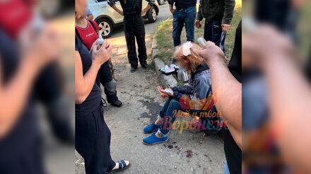 В Воронеже на женщину напала стая собак