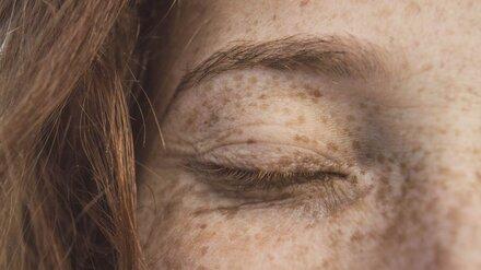 Воронежские врачи назвали самые частые признаки рака кожи