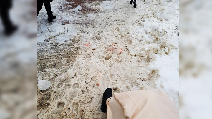 В Воронеже на женщину упала глыба льда: горожанка с тяжёлой травмой попала в больницу