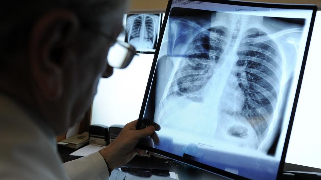 В Воронеже у студентов 3 вузов нашли открытую форму туберкулёза