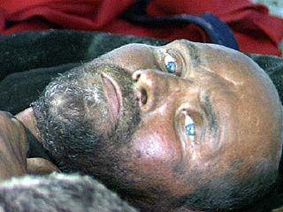 Бездомный человек для воронежских больниц - не пациент
