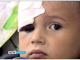 Мужчина попал стеклянной бутылкой в голову трехлетнему мальчику