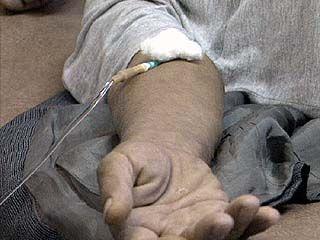От токсического гепатита скончался ещё один мужчина
