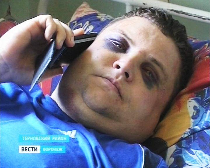 В Воронежской области избитый неизвестными фермер винит в случившемся конкурентов