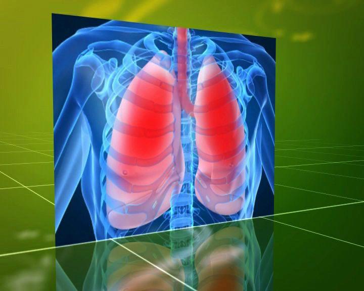 Наш рецепт: Что такое туберкулёз и чем он опасен?
