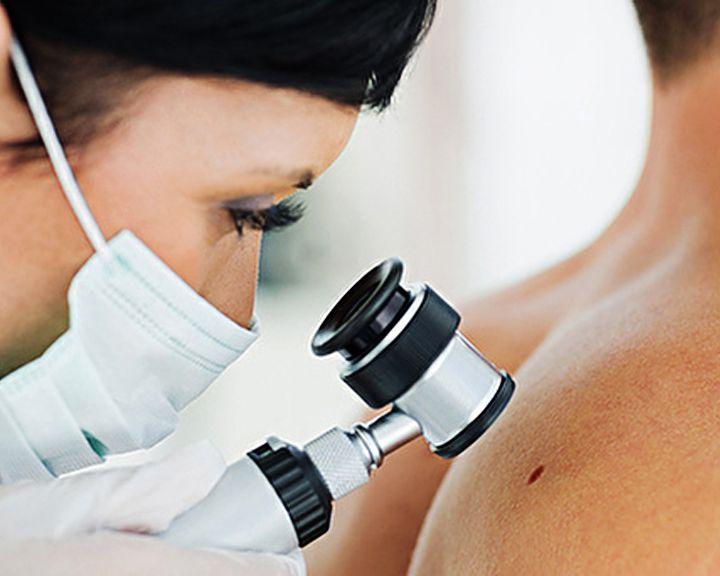 Наш рецепт: Врач-онколог об эффективном методе выявления кожных заболеваний